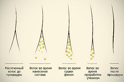 средства от секущихся волос народные средства